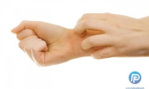 دیابتی ها بیشتر در معرض نیش زدگی حشرات قرار دارند